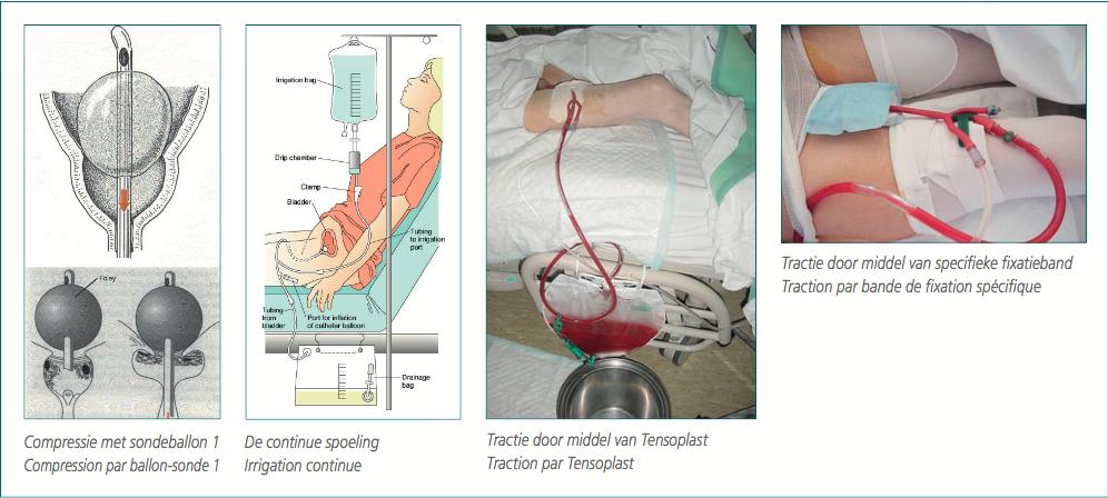 Bloederige urine
