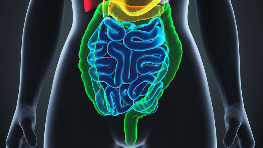 rectumkanker