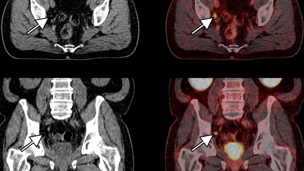 ct gezonde nieren