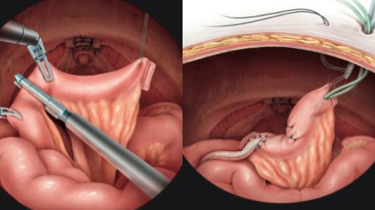 plaatsen suprapubische katheter