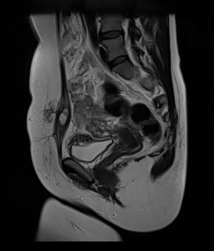 endometriose MRI blaas
